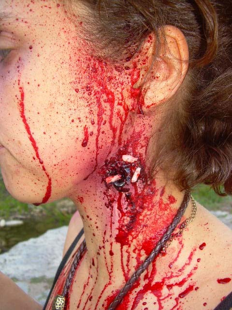 bullet-wound-with-maggots_0